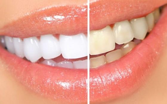 Izbeljivanje zuba novi sad
