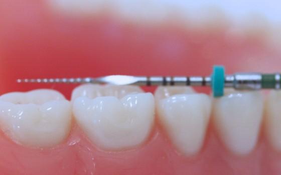 endodoncija novi sad dental hub